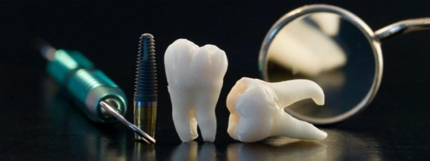 implantes dentales toledo
