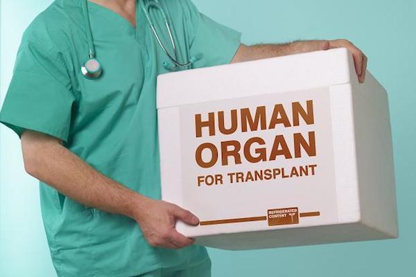 tips sejarah asal usul transplantasi organ