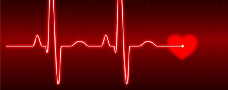 aritmia jantung