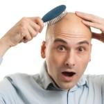 Tips Anti Botak: 5 Cara Alami Mengatasi Kebotakan