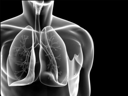 Gangguan Respirasi-Hipokapnia