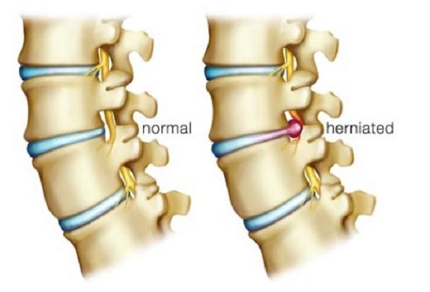 Hernia Tulang Belakang