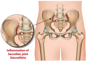 si joint pain amazing life chiropractic
