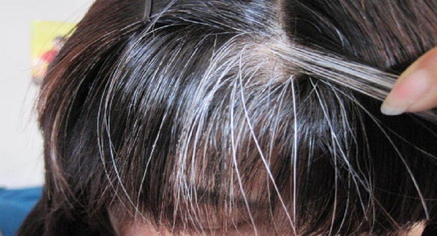 白頭髮原因