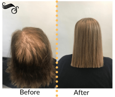 Before and after ultrastrands hair systems female pattern baldness