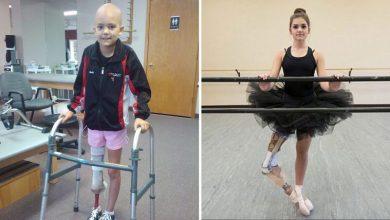 Photo of 15χρονη μπαλαρίνα που έχασε το πόδι της από καρκίνο σήμερα χορεύει ξανά [video]