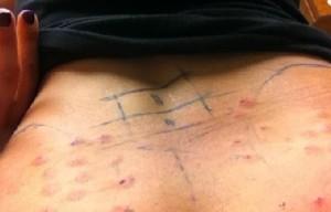 Bel Ağrısı ve Bel Fıtığı Tedavisinde Proloterapi