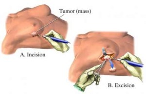 Breast biopsy cpt codes 2014 - Tips and Tricks