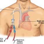 Central Catheter Placement