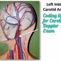 Easy way to learn Cpt code for Carotid Doppler