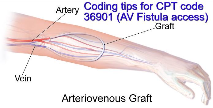 tips for New CPT code 36901 (AV fistula Access)