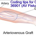 Amazing tips for New CPT code 36901 (AV fistula Access)