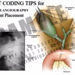 Superb coding tips for CPT code 36473, 36474, 36475 and