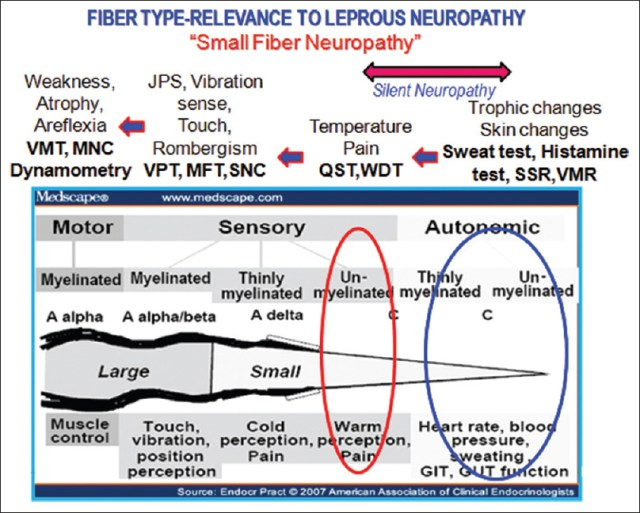 Figure 5: A diagram depicting the Erlanger and Grasser's classification of fibers types and its function in a peripheral nerve. According to the size and speed of conduction, the nerve fibers are classified into three different categories, namely, A, B, and C. Symptoms and signs of peripheral neuropathy ascribed to the type of fiber loss in neuropathies. (<i>Source: Medscape, Endocrine Practice 2007</i>)