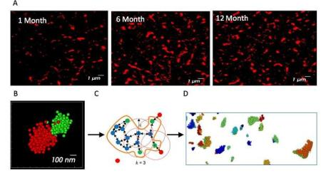 Parkinson progression2