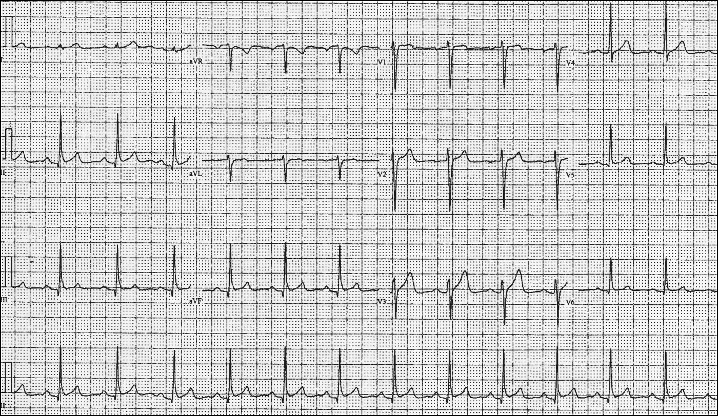 Resting Tachycardia In An Athlete