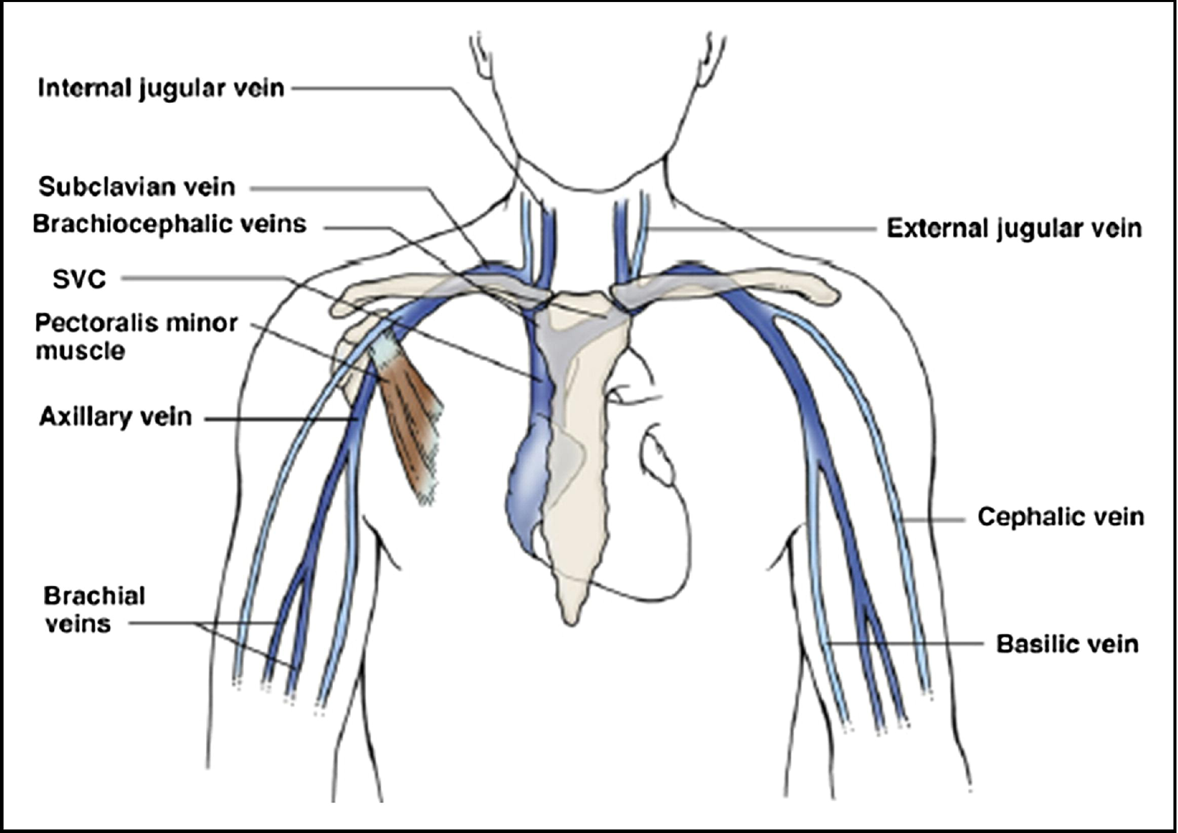 Upper Extremity Deep Venous Thrombosis A Review