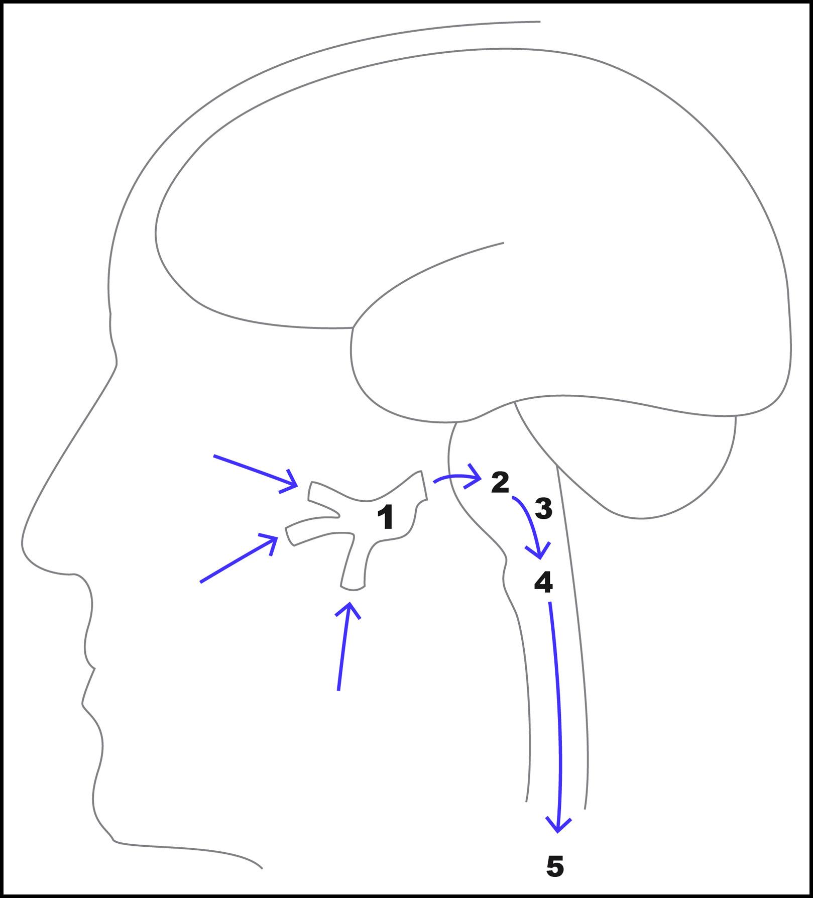 Trigeminocardiac Reflex As The Presentation Of Maxillary