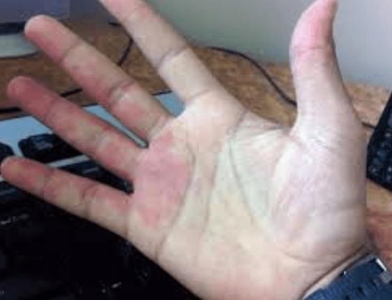 Cara Deteksi Penyakit dengan Mudah Menggunakan Telapak Tangan Kita Cara Deteksi Penyakit dengan Mudah Menggunakan Telapak Tangan Kita