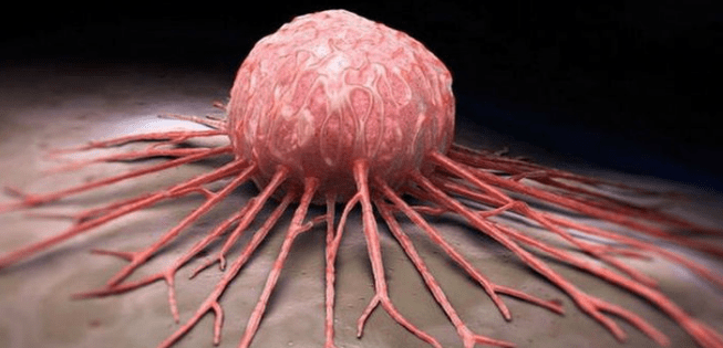 Jenis Kanker Mematikan yang Perlu Anda Ketahui 10 Jenis Kanker Mematikan yang Perlu Anda Ketahui