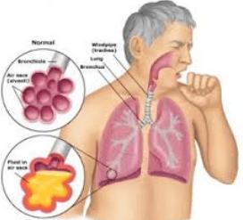 Kenali 8 Penyakit dan Gangguan Sistem Pernapasan Manusia Beserta Penyebabnya