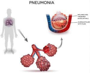Waspadai Pneumonia, Gejala, Penyebab, dan Cara Pencegahannya