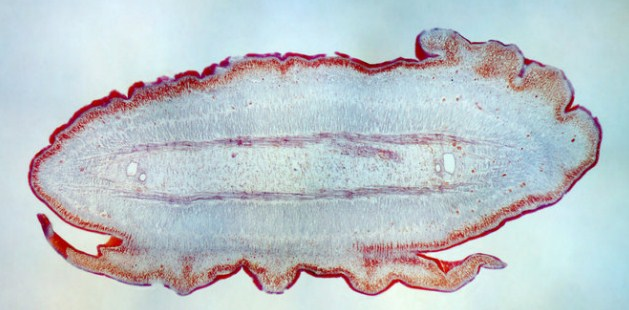 cacing pipih platyhelminthes