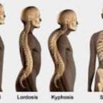Jelaskan perbedaan antara lordosis, kifosis, dan skoliosis!