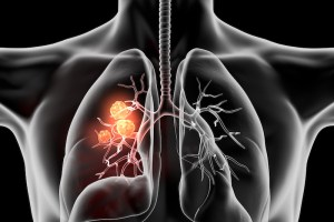 lung x-ray for black lung coal workers pneumoconisis