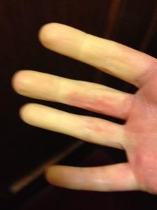 Post-run Raynaud's fingers.