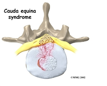 Image result for cauda equina syndrome