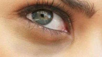 Photo of طرق بسيطة للتّخلص من السّواد تحت العين