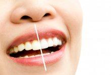 Photo of علاج اصفرار الاسنان طبيعيا بالآعشاب