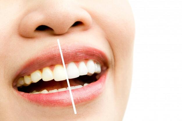 علاج اصفرار الاسنان طبيعيا بالآعشاب
