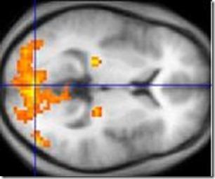 Imagerie par raisonnance magnétique