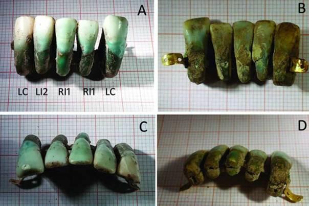 El conjunto de dentaduras postizas medievales descubierto recientemente en Italia. Fotografías: Universidad de Pisa