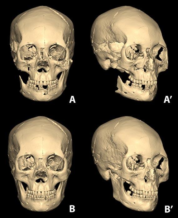 El cráneo elongado de la mujer coreana reconstruido a partir de sus fragmentos óseos utilizando un programa informático de modelado en 3D. (A y A'). Debajo podemos ver la reconstrucción completa del cráneo incluyendo sus partes dañadas o perdidas (B y B'). Imagen: Lee et al., publicada bajo una Licencia Creative Commons.