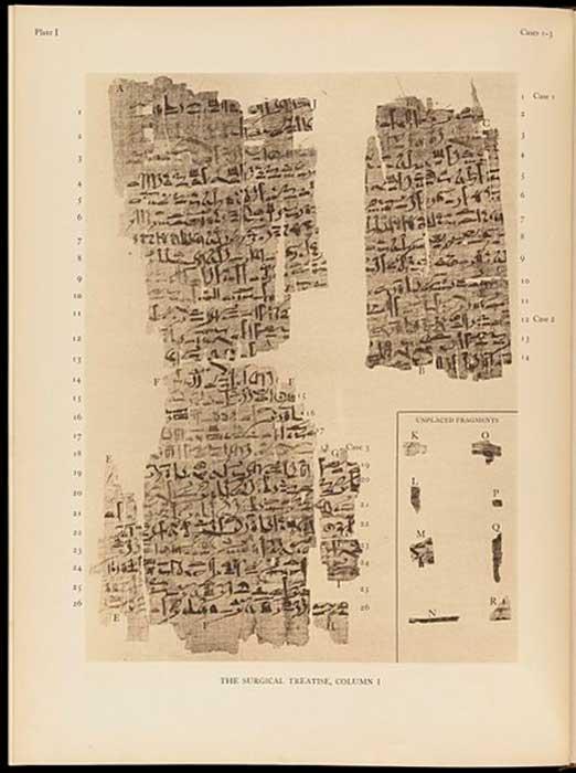 Página del papiro de Edwin Smith. (Fæ / CC BY-SA 4.0)