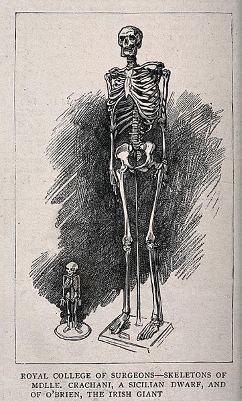 Scheletri di un gigante maschile e una nana, esposti presso il Royal College of Surgeons.
