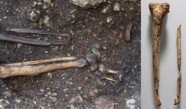 Pie izquierdo del caballero fue amputada, tan visible en esta foto
