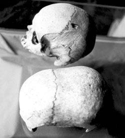 The Hypogeum of Hal Saflieni - Elongated Skulls