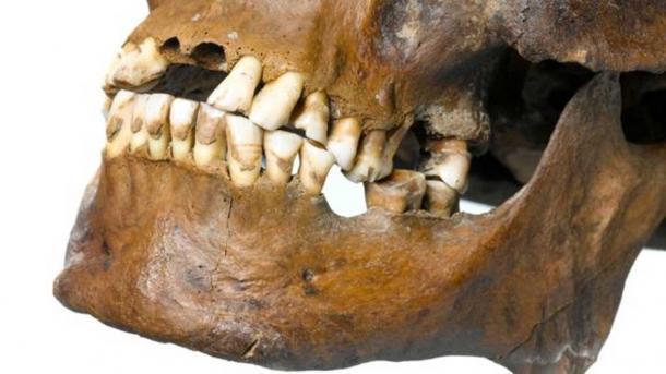 Sono stati trovati profondi solchi sui denti che sarebbero stati causati da un'azione ripetitiva. (MOLA Headland Infrastructure)