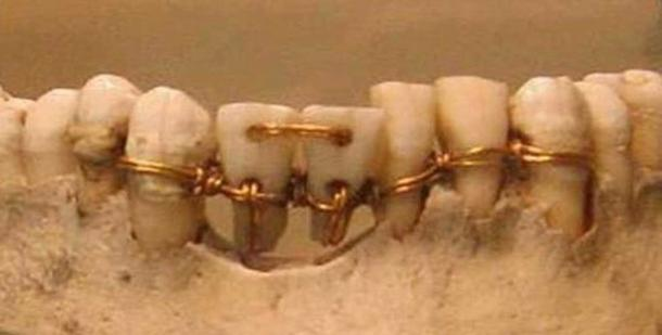 Incredible dental work found on an ancient mummy. The two centre teeth are donor teeth.