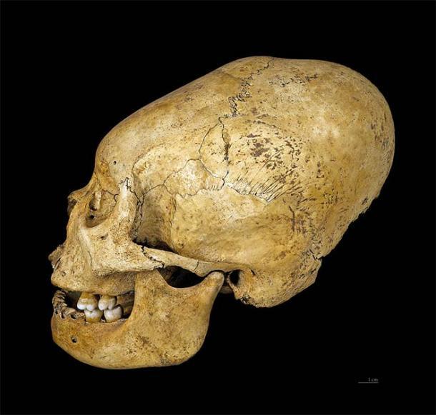 Crâne déformé de Proto Nazca, vers 200–100 av.  (CC BY-SA 4.0)