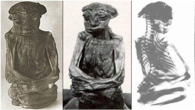 Fotos y x-ray de la San Pedro de la momia