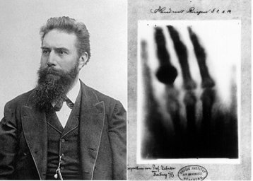 Image result for Wilhelm Röntgen discovers the X-ray.