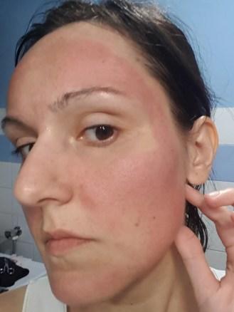 lato sinistro del viso