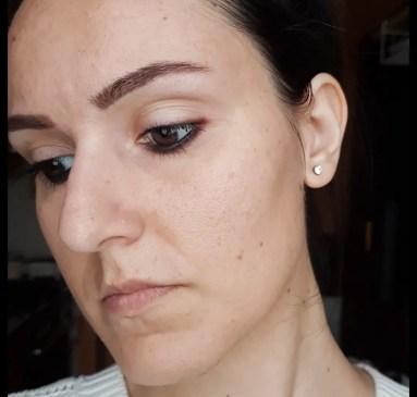 Il mio viso il giorno dopo