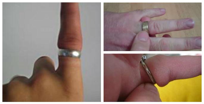 TRUC SIMPLU: cum scoti un INEL INTEPENIT pe deget?