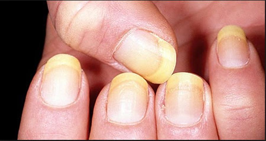 Ai unghiile tocite, ingalbenite sau crapate? Iata ce boli ascund